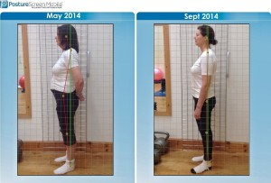 Looking much leaner, taller and standing straight. A fantastic result for Jacqueline.